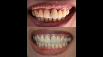 Anterior Bridge (#9-11) Completely Fabricated In-Office by Dr. Rachel Lewin Using CEREC Technology