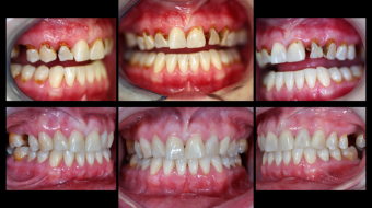 Comprehensive Caries Control using Composite Restorations
