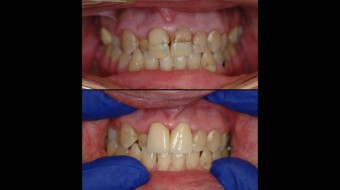 Two Unit Anterior Crowns Fabricated In-Office by Dr. Rachel Lewin Using CEREC Technology (Phase I)