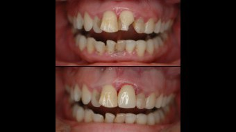 Emergency Visit: Single Unit Anterior Crown Fabricated In-Office by Dr. Rachel Lewin Using CEREC Technology