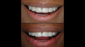 Four Unit Anterior Veneer Replacements Fabricated In-Office by Dr. Rachel Lewin Using CEREC Technology