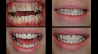 Four Unit Anterior Crowns Fabricated In-Office by Dr. Rachel Lewin Using CEREC Technology