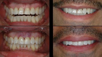 Two Unit Anterior Crowns Fabricated In-Office by Dr. Rachel Lewin Using CEREC Technology