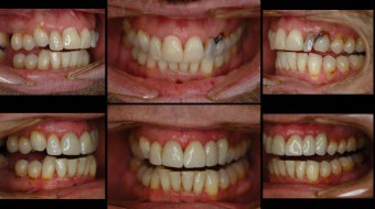Multi-Unit Anterior Crown & Bridge (#9-11) Completely Fabricated In-Office by Dr. Rachel Lewin Using CEREC Technology